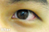 eye_12_m30b_s_after